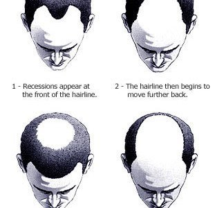 Men's Baldness Treatment, Solution and Tips