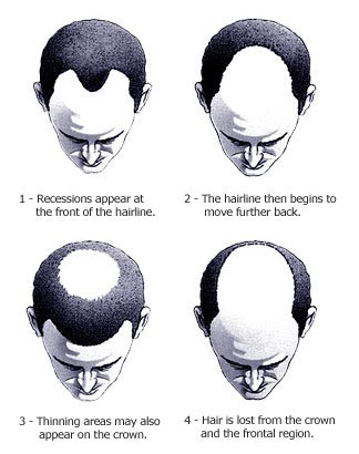 how to stop thinning hair men